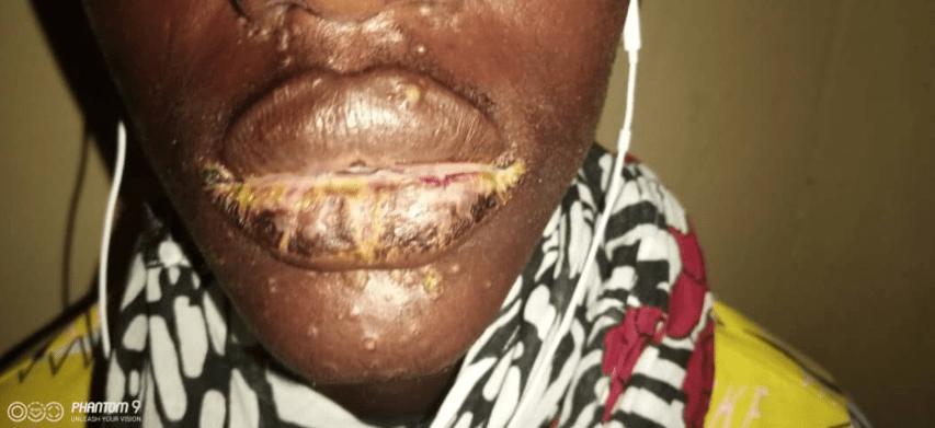 (Photos) Une étrange maladie touche des pêcheurs sénégalais, Thiaroye Sur-Mer troublée